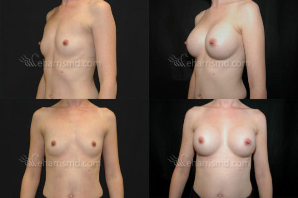 breast-augmentation-san-antonio-02