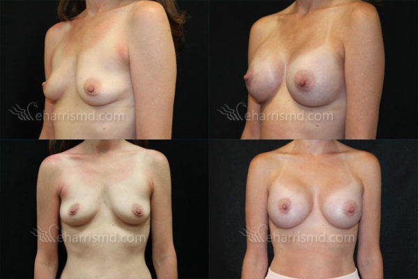 breast-augmentation-san-antonio-12
