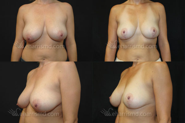 breast-reduction-san-antonio-02
